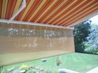 striped retractable sunscreen
